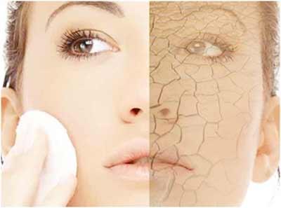 dryskin-acne1